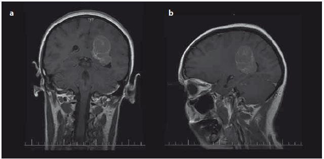 Typická lokalizace intraventrikulárních meningiomů v oblasti trigona postranních komor – předoperační MR s kontrastní látkou u pacienta s meningiomem trigona levé postranní komory koronální (a), sagitální (b). Fig. 1. Typical localisation of intraventricular meningiomas in trigonal area of lateral ventricles – preoperative contrast enhanced T1-weighed image of patient with meningioma of left trigonal area (a) coronal plane, (b) sagital plane.
