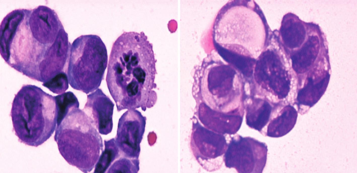 a) Shluk velkých epiteliálních nádorových buněk v mozkomíšním moku (barvení May-Grünwald-Giemsa). b) Shluk nádorových buněk v mozkomíšním moku s vakuolizací cytoplazmy (tzv. buňky tvaru pečetního prstenu)  iagnostické pro adenokarcinom (archiv autora).