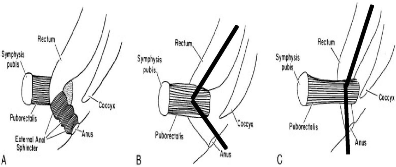 Mechanismus relaxace svalů pánevního dna při defekaci A (vlevo): rektum a kontrahovaný m. puborectalis, ostrý anorektální úhel a zevní svěrač B (uprostřed): klidový stav – kontrahovaný m. puborectalis a ostrý anorektální úhel C (vpravo): defekace – relaxace m. puborectalis a napfiímení anorektálního úhlu