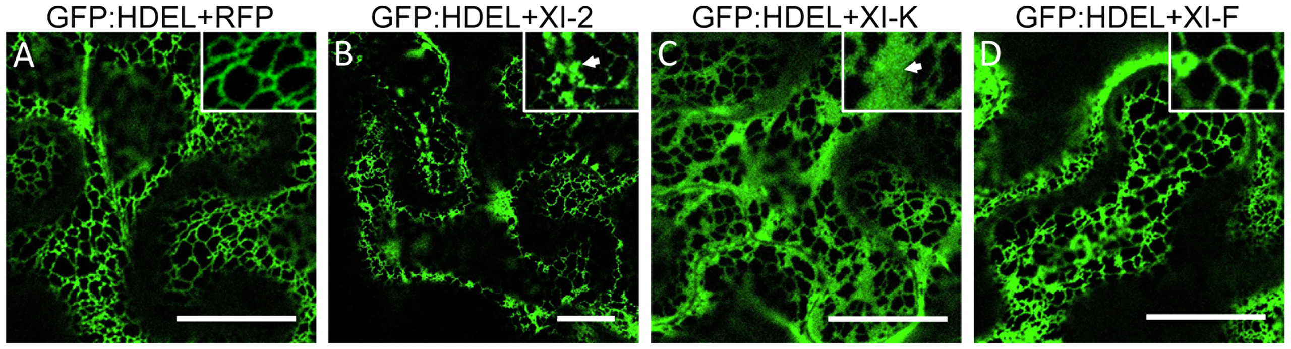 Effect of specific myosin tail expression on ER structure.