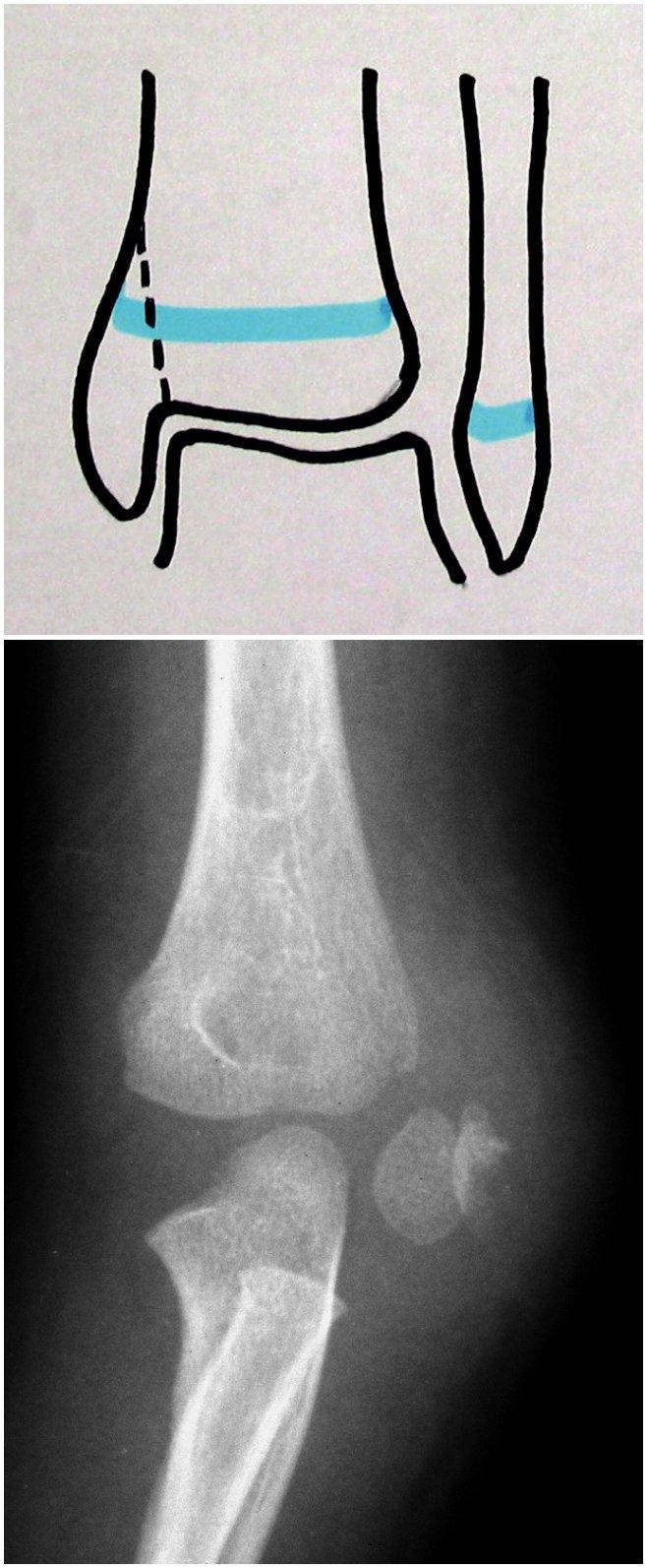 a. Zlomenina epifýzy typ Salter-Harris IV (schéma). b. Zlomenina radiální části kondylu humeru typ Salter-Harris IV (13r-E/4.1 dle AO klasifikace pro dětský skelet). Zlomenina epifýzy radiální části kondylu humeru s odlomením metafyzárního fragmentu.