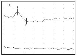Obr. 1a) Registrace BAEP při stimulaci levého ucha (křivka nahoře) a pravého ucha (křivka dole) u pacienta s rozsáhlým poraněním mozku.