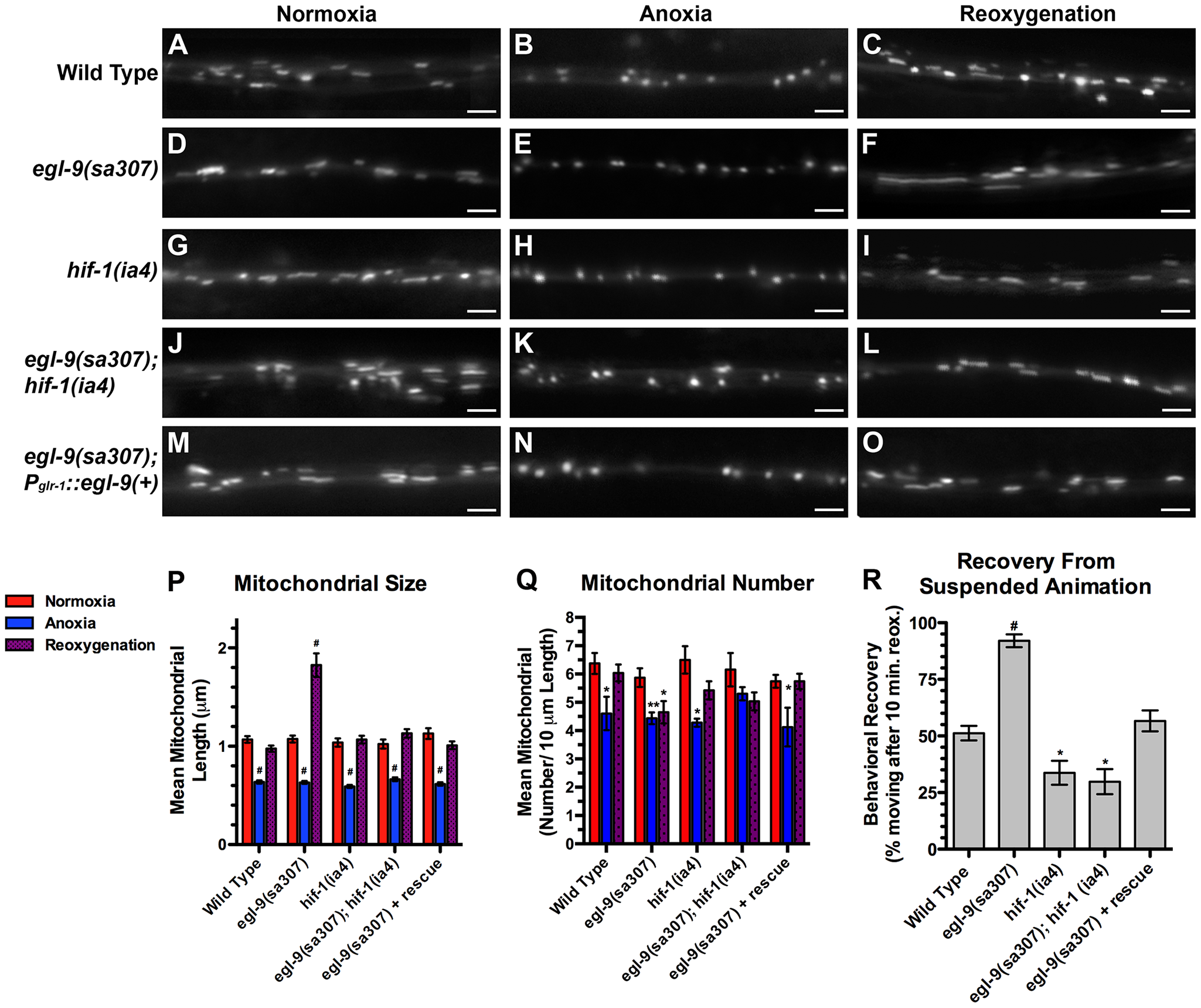 The hypoxia response pathway regulates mitochondrial hyperfusion upon anoxia recovery.