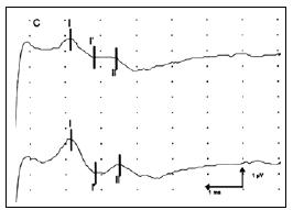 Obr. 1c) Registrace BAEP při stimulaci levého ucha (křivka nahoře) a pravého ucha (křivka dole) u pacienta s rozsáhlým poraněním mozku.