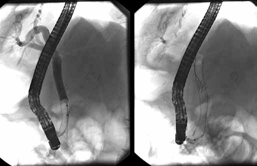 Vľavo mierne vtiahnutý biliárny kovový stent deň po jeho zavedení, vpravo stent po jeho povytiahnutí do dvanástnika.