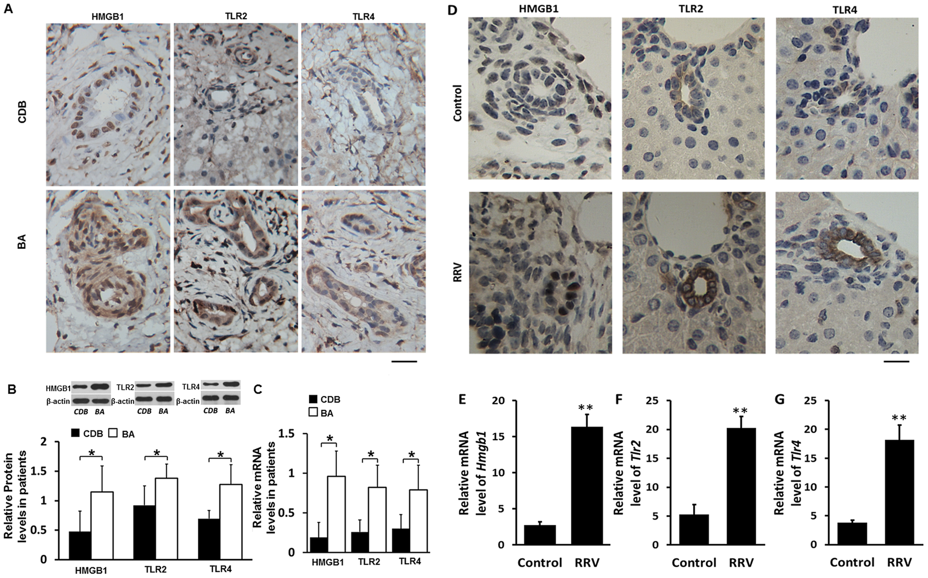 Expression of HMGB1, TLR2 and TLR4 in livers of infants with biliary atresia (BA) and in bile ducts of mice challenged with RRV.