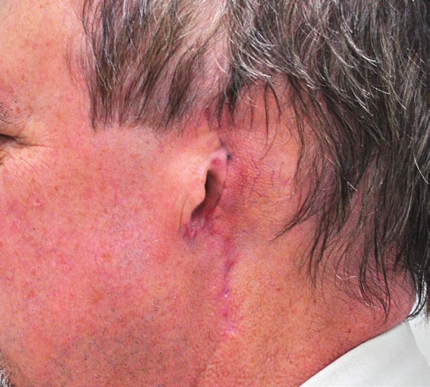 Pacient s melanomem ušního boltce – po operaci.
