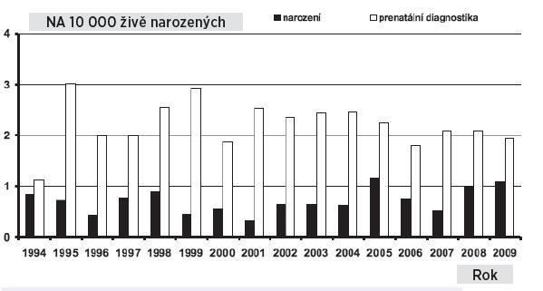 Gastroschíza v České republice, prevalence u prenatálně diagnostikovaných případů a u narozených dětí, 1994– 2009 Fig. 7. Gastroschisis in the Czech Republic, prevalence of prenatally and postnatally diagnosed cases, 1994–2009
