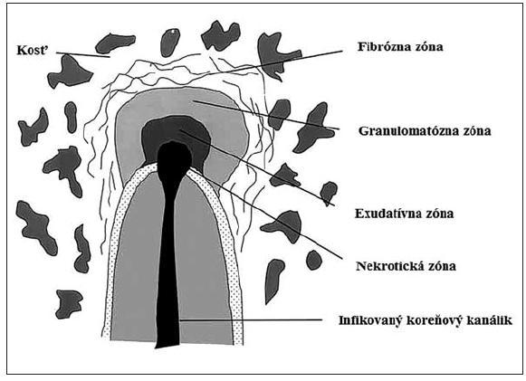 Histologická štruktúra chronickej periapikálnej zápalovej lézie [7]