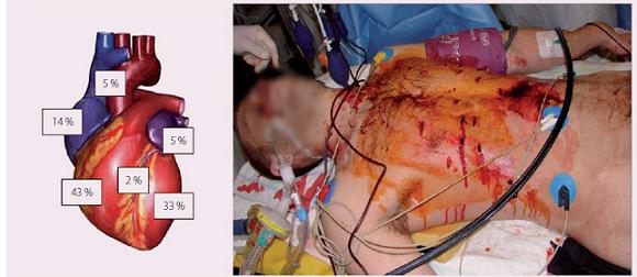 Incidence lokalizace srdečních penetrujících poranění [9,10].
