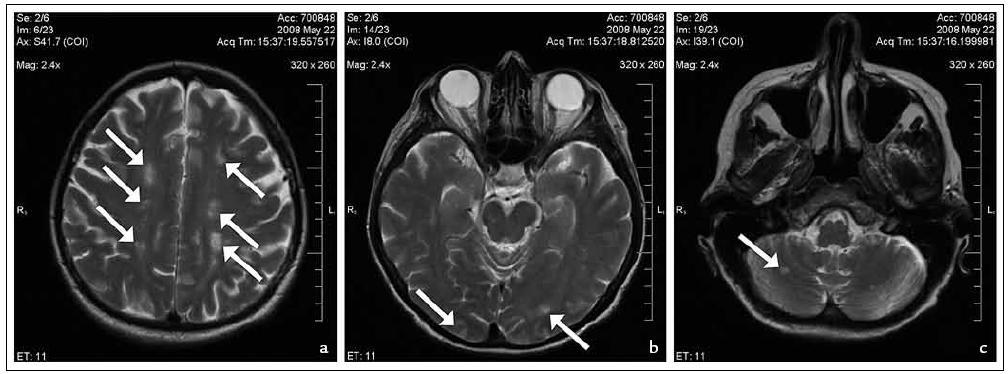 První MR mozku: vícečetná ložiska v centrum semiovale (a), v okcipitálním laloku a mezencefalu (b) a mozečkové hemisféře (c).