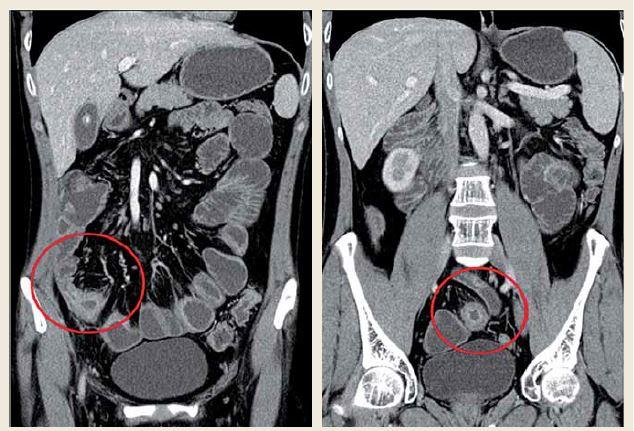 CT enterografie, říjen 2010: 5 skip lézí (délka 3-5 cm) na distálním ileu (celková délka 60 cm). Fig. 1. CT enterography, October 2010: 5 skip lesions (length 3-5 cm) on distal ileum (total length 60 cm).