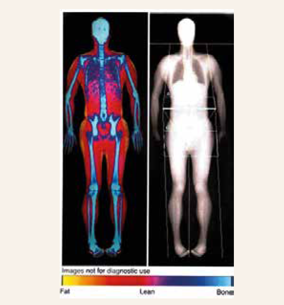 DXA scan of a whole body composition measurement. <br> Modified according to [13]