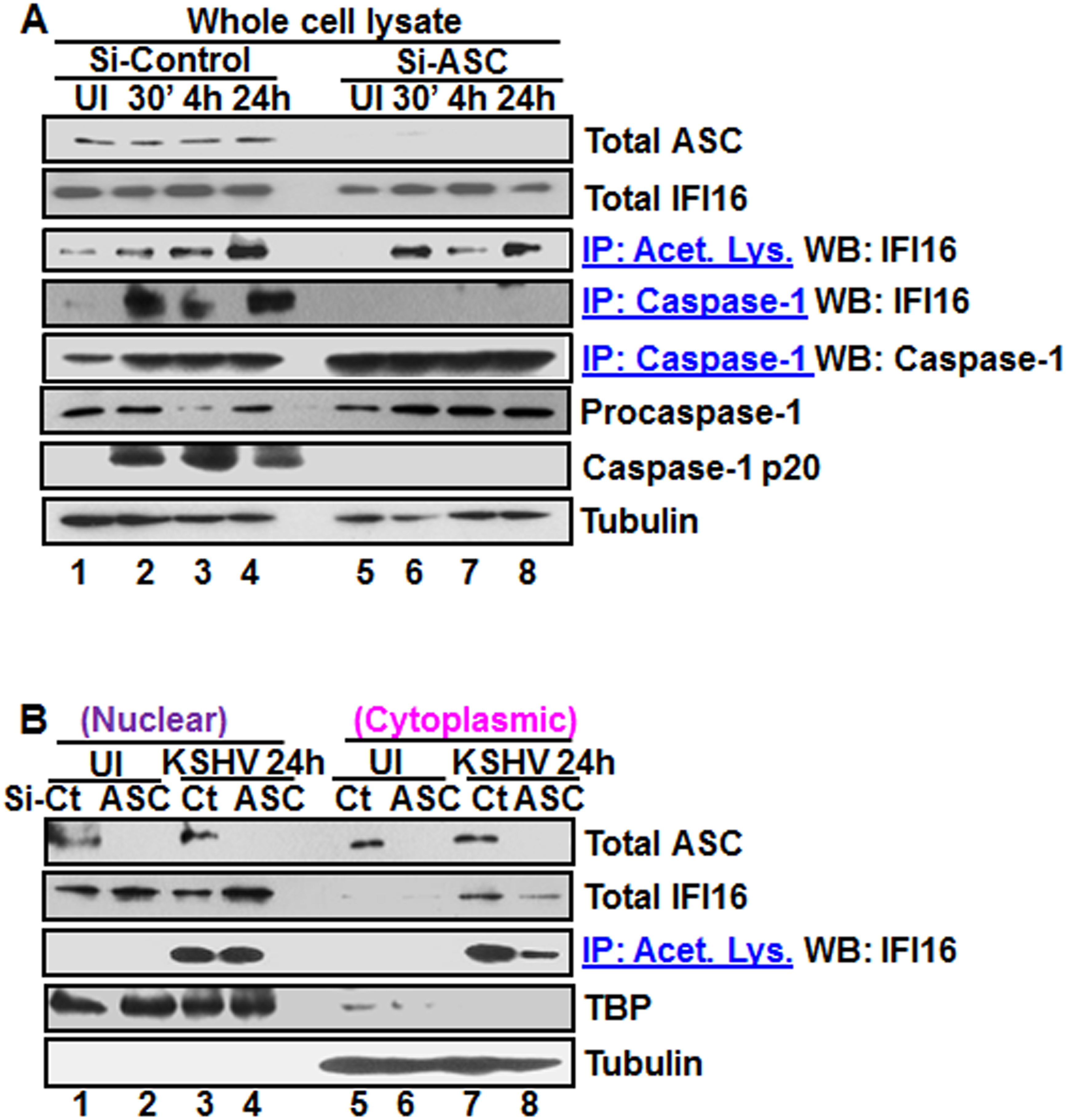 Effect of ASC knockdown on IFI16 acetylation and translocation.