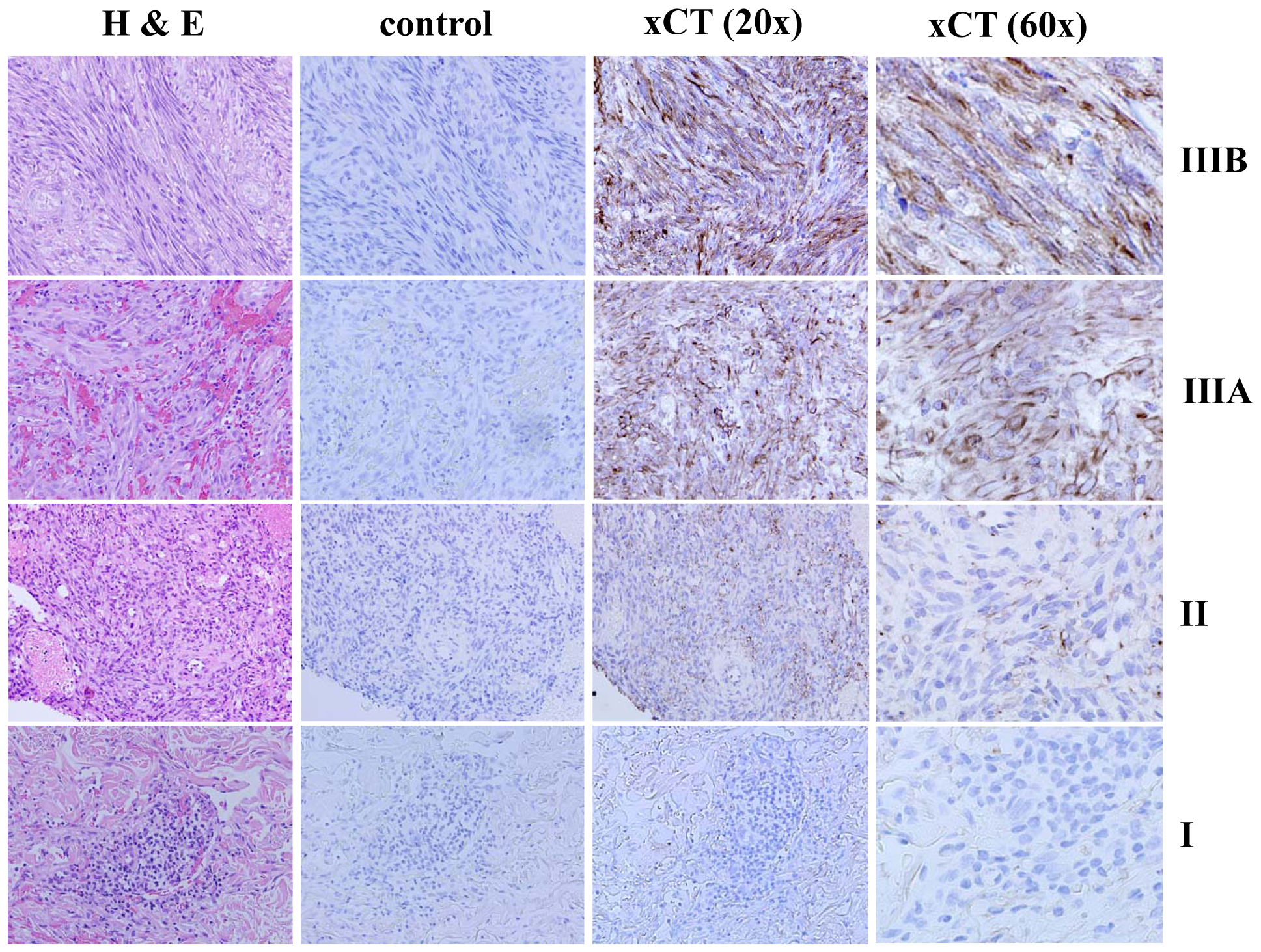 xCT expression within KS lesions correlates with tumor stage.