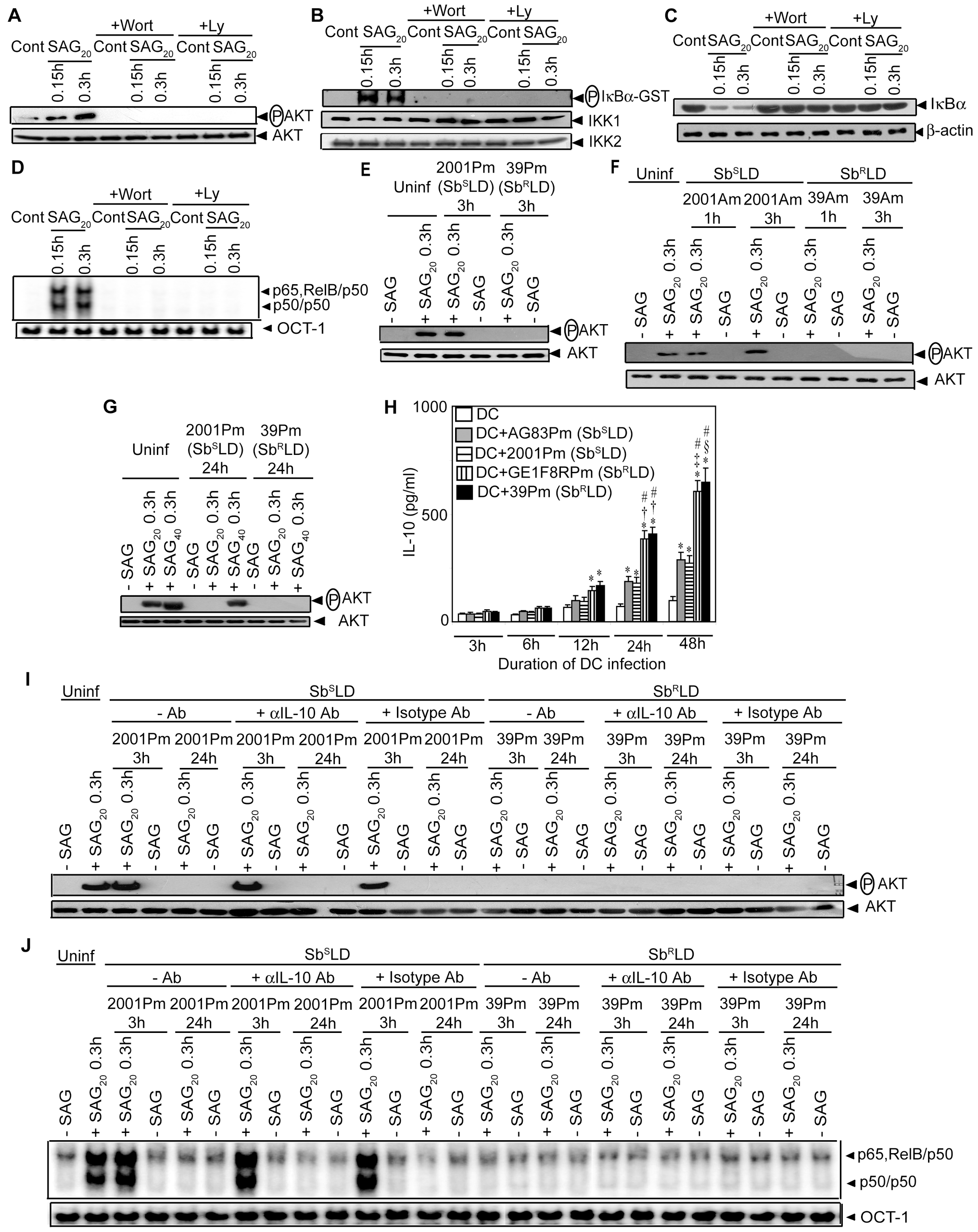PI3K/AKT suppression by Sb<sup>R</sup>LD inhibits SAG-induced NF-κB signaling in an IL-10 independent manner.