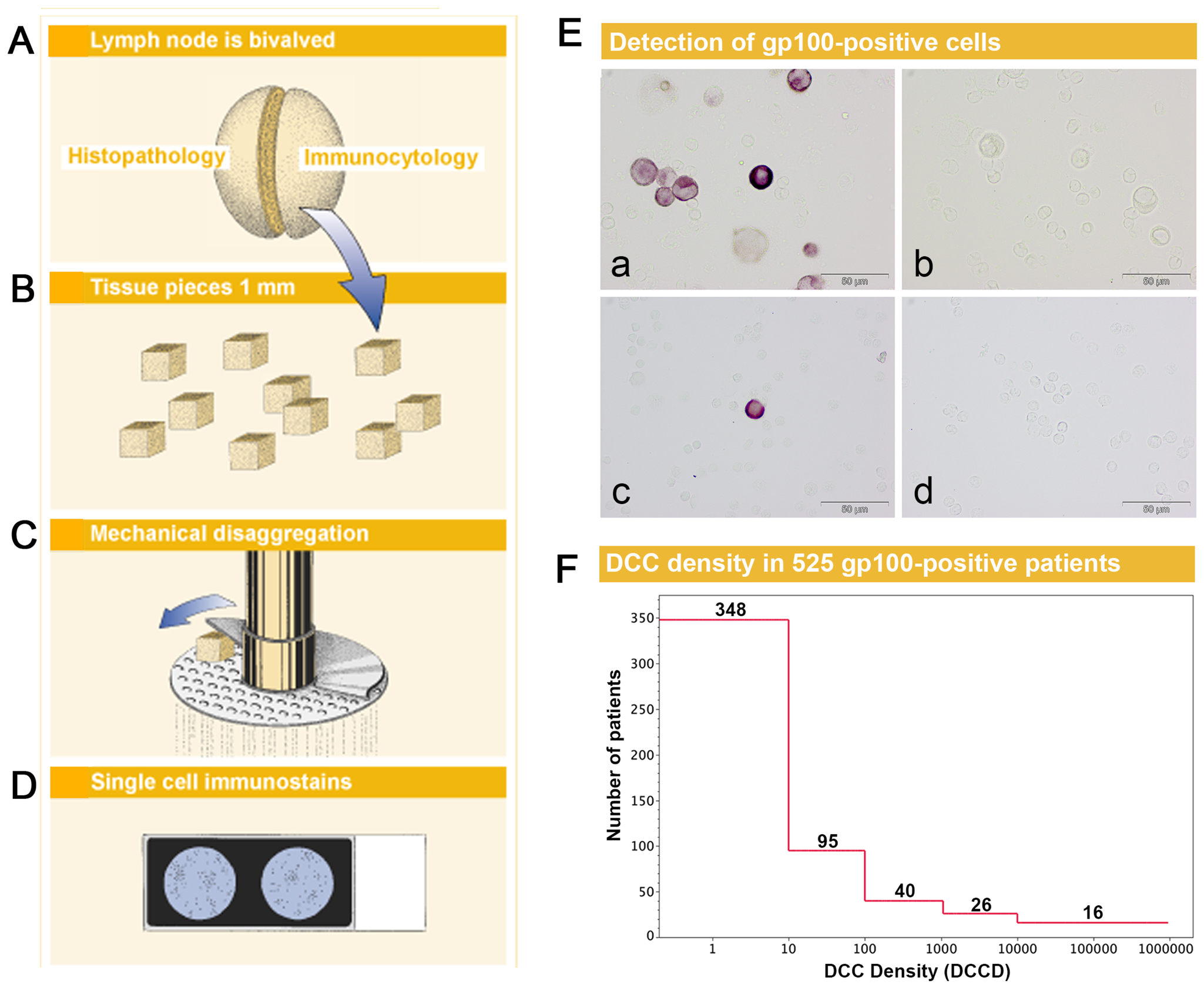 Sample preparation, melanoma cell detection, and distribution of disseminated cancer cell densities.