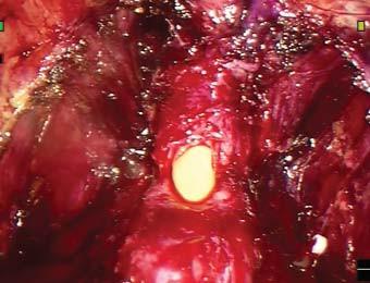Incize dorzálního obvodu uretry.