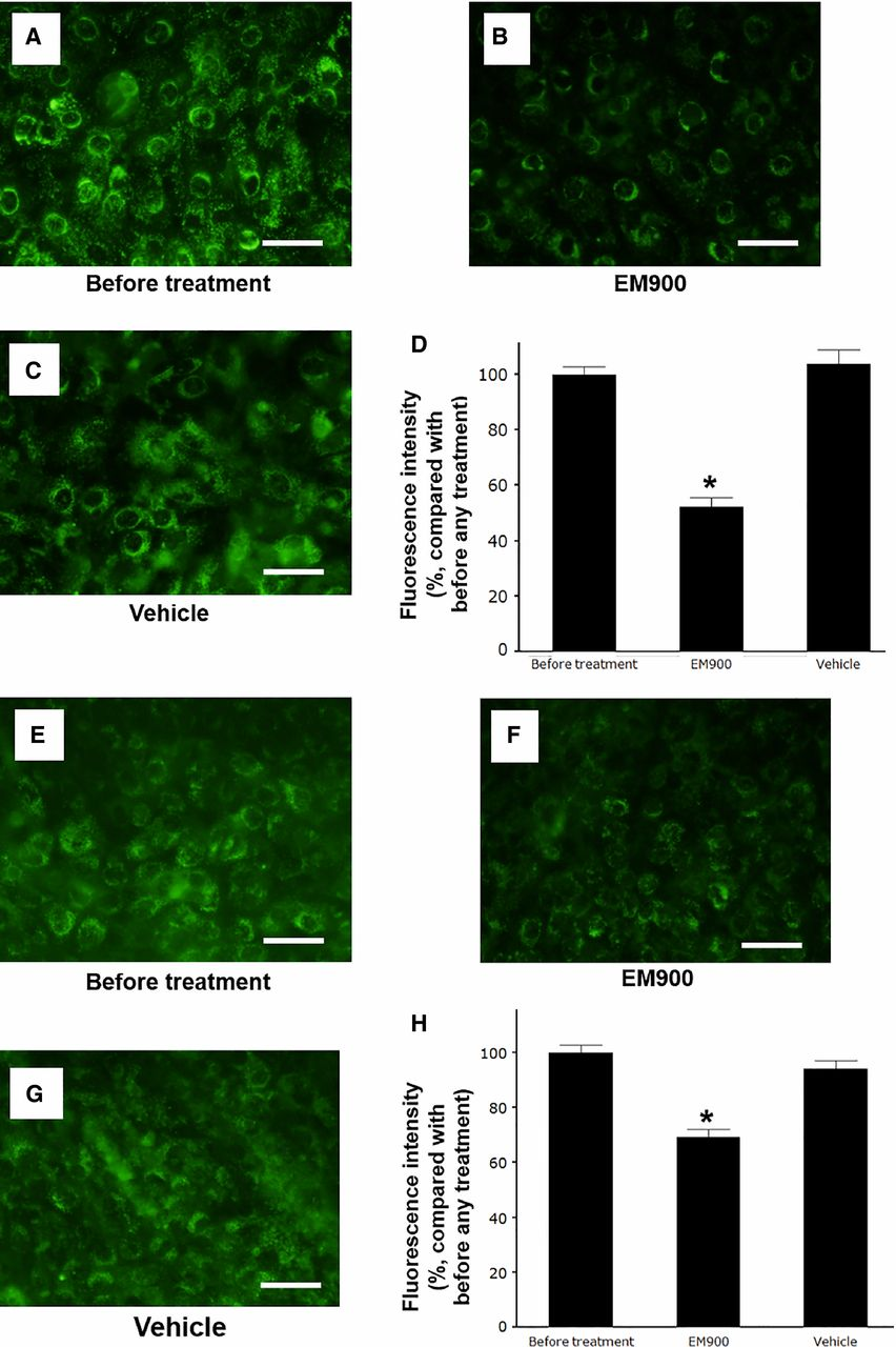 Figure 4. (A–C and E–G) Changes in the distribution of acidic endosomes exhibiting green fluorescence in the HTE (A–C) and HNE (E–G) cells at 72 h after pre treatment with EM900 (B and F) or vehicle (C and G) or untreated cells cultured in medium alone (before treatment) (A and E) (Bar = 100 μm). (D and H) The effects of pretreatment with EM900 or vehicle assessed in HTE cells (D) and HNE cells (H) at 72 h after treatment or in untreated cells (before treatment) on the fluorescence intensity of acidic endosomes. The results are expressed as the mean ± SEM for five tracheae. Significant differences compared to the vehicle alone (Vehicle) are indicated by *P < 0.05.