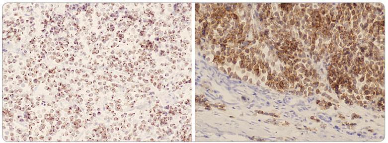 Buňky tumoru s výraznou dot-like paranukleární pozitivitou cytokeratinu 20 (vlevo, x 200) a membránovou pozitivitou CD 56 (vpravo, x 200).
