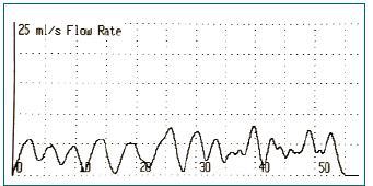 Uroflometrie prokazující přerušovanou mikci.