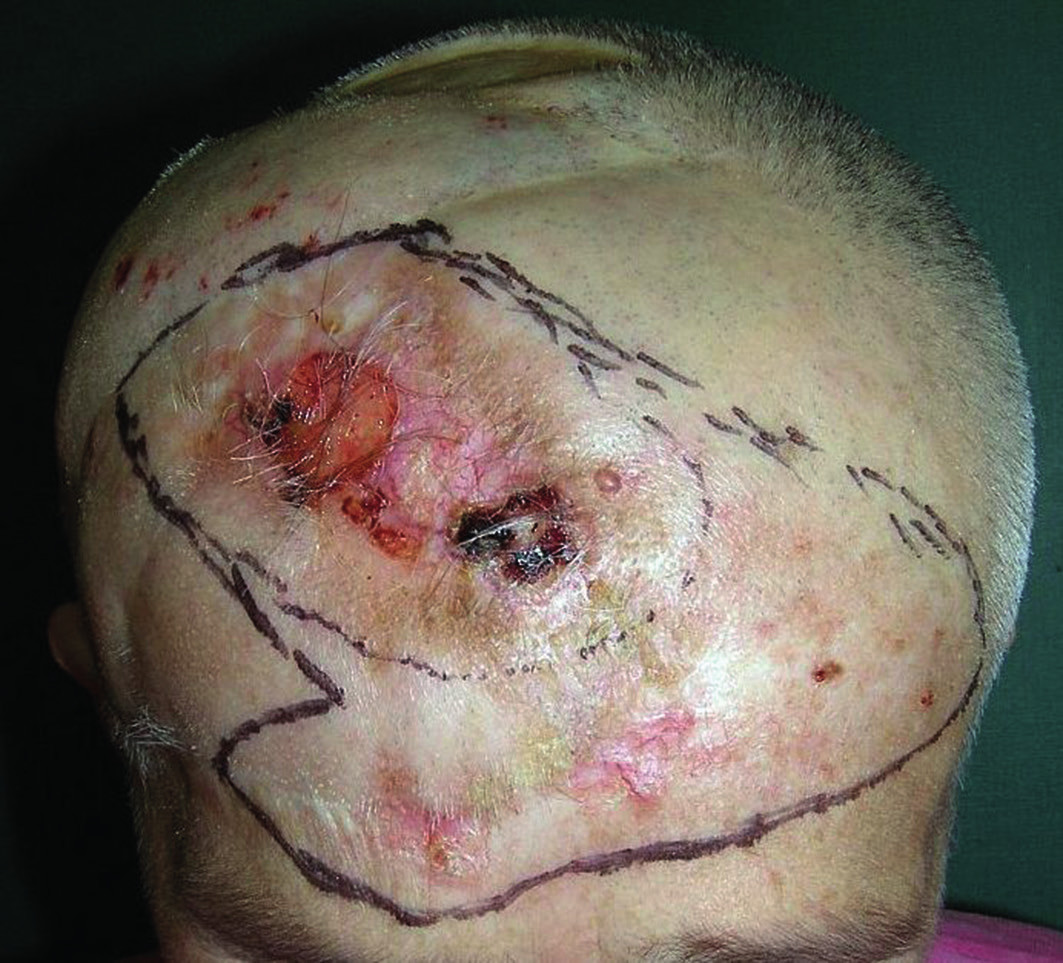 Obr. 1a. Recidiva bazaliomu na hlavě před operací v roce 2008