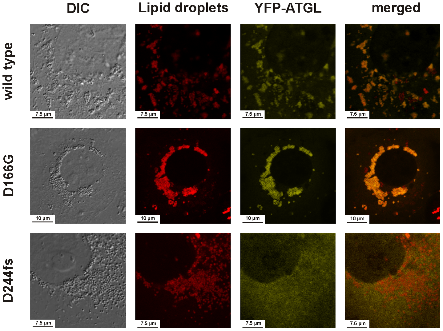 Intracellular localization of the wild-type ATGL protein and the mutants D166G and D244fs as determined by laser scanning microscopy.