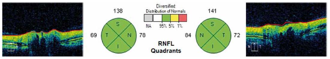 Grafické znázornění výsledků měření RNFL v jednotlivých kvadrantech kolem terče zrakového nervu na sítnici. V kruzích na obrázku jsou znázorněny jednotlivé kvadranty (S – horní (v tabulce H), I – dolní (v tabulce D), T – temporální, N – nazální) a číselné hodnoty měření RNFL u jednoho z pacientů. Fig. 2. Graphical representation of measurement results for each quadrant RNFL around the optic nerve in the retina. The circles in the figure show the individual quadrants (S – upper (H in table), I – lower (D in table), T – temporal, N – nasal) and numerical values for RNFL measurement in one of the patients.