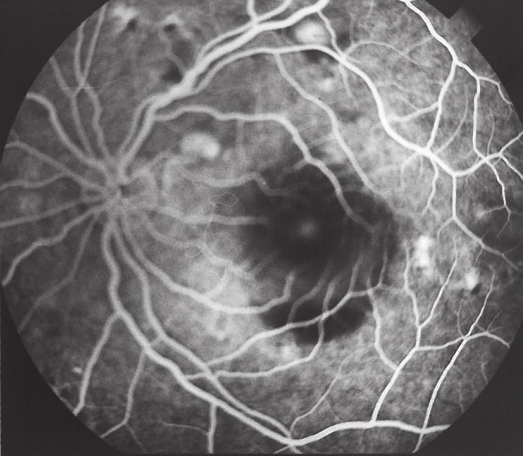 Obr. 2 b FAG. Ľavé oko r. 1996