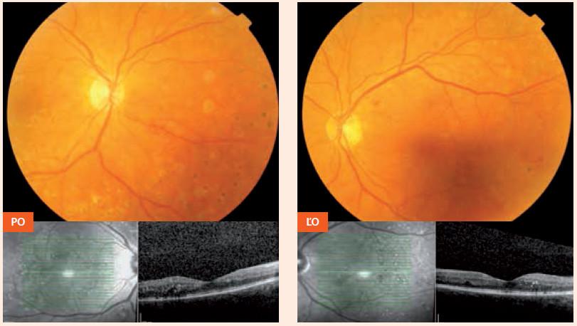Nález približne 1 mesiac pred počatím (16. 7. 2012) – po ošetrení laserkoaguláciou PO – pravé oko ĽO – ľavé oko