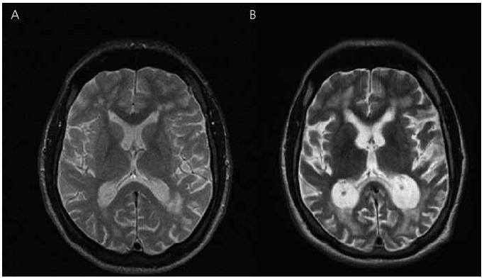 Magnetická rezonance mozku pacienta IV-7. Transverzální řezy v T2 vážených obrazech – vývoj atrofie: (A) rok 2003, (B) rok 2010.