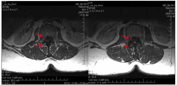 Obr. 2, 3. MR LS chrbtice priestoru L2/3 – axiálny rez T1 po podaní KL sa ukazujú dve periférne sa farbiace expanzie uložené intraspinálne extradurálne vpravo s tlakom a deformáciou durálneho vaku.