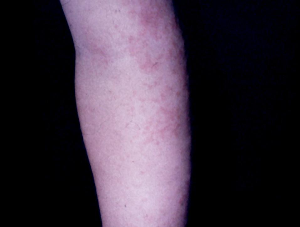 APEC syndrome, 5-ročné dievča (Mycoplasma pneumoniae)