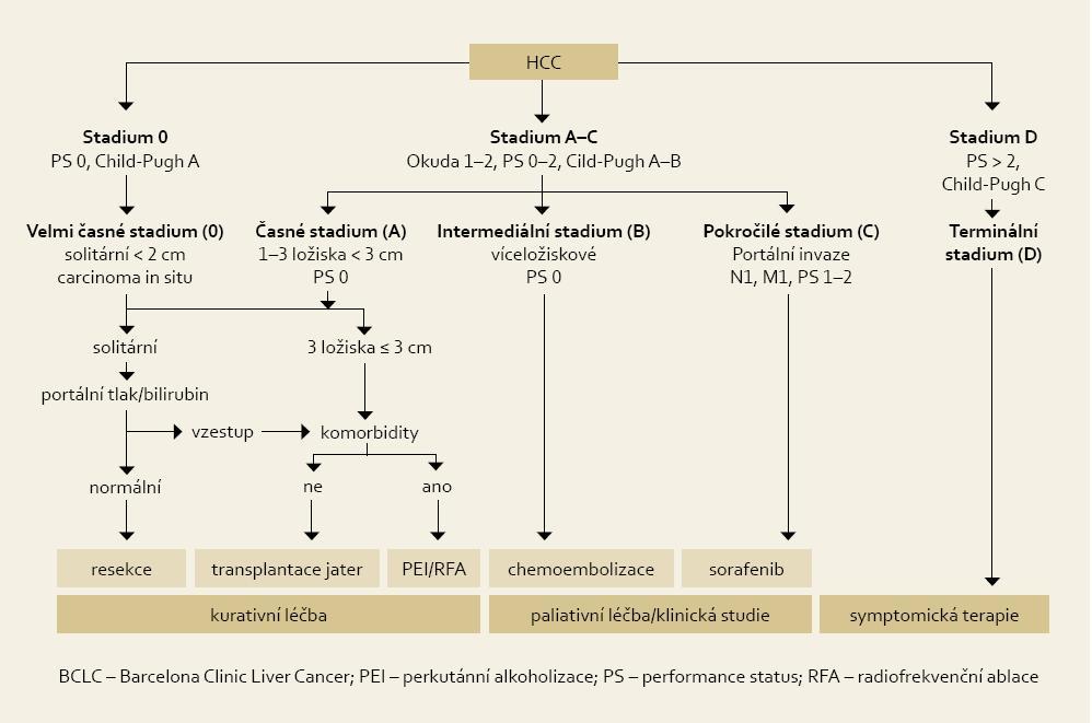 Algoritmus léčby HCC podle klasifikace BCLC. Fig. 1. Algorithm of HCC treatment according to BCLC classification.