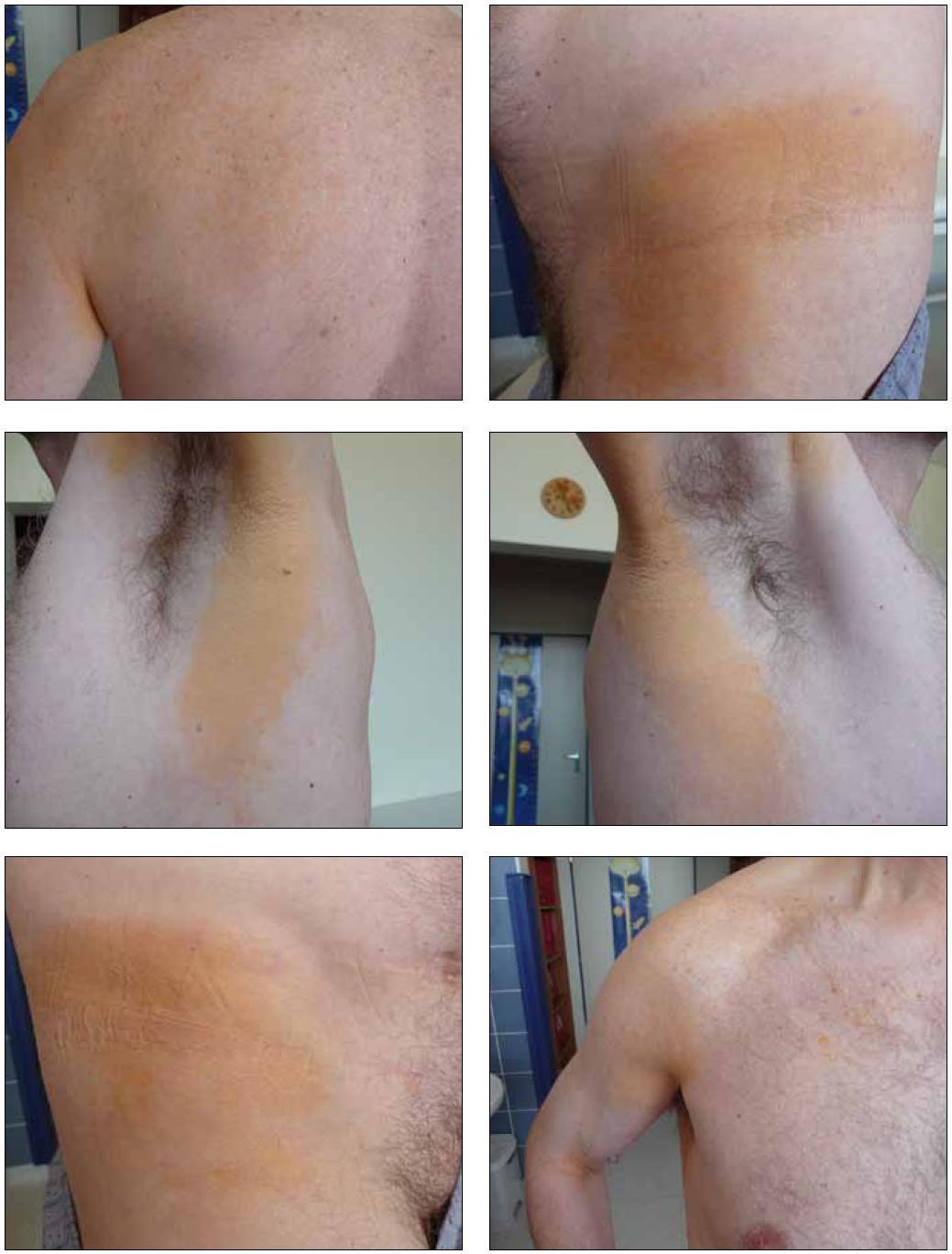 Obr. 1–6. Kožní povrch s plochými ložisky normolipemických xantomů, které mají žlutooranžovou barvu a poměrně ostré ohraničení od nepostižení kůže.