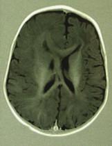 Pacient 2, dívka, 7 měsíců. (EP paroxy, zástava psychomotorického vývoje).