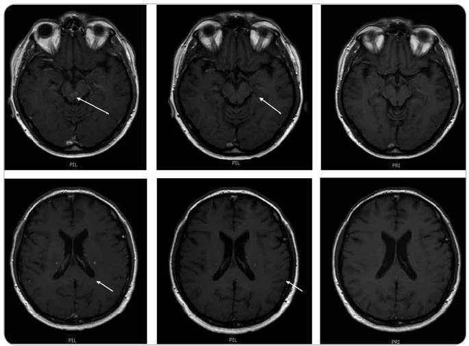 MR zobrazení mozku z 9. 7. 2009. Na vyšetření v době aplikace posledního cyklu 2-chlorodeoxyadenosinu je patrná již regrese velikosti ložiska vlevo při postranní komoře, z původních 7 mm na 4 mm, sytost po aplikaci kontrastní látky je rovněž méně nápadná (zde je nutno vzít v úvahu, že byla aplikována stejná kontrastní látka gadovist ve stejném množství, tedy hodnocení sytosti je při dodržení standardního protokolu možné, jeho přesná kvantifikace se však při MR vyšetření neprovádí, subjektivní chyba je vyvážena hodnocením dvou nezávislých lékařů). Na dalším vyšetření 21. 9. 2009 (po ukončení 2-chlorodeoxyadenosinu) je již regrese všech ložisek na první pohled významná, ložiska v kmeni se již téměř nesytí a největší ložisko supratentoriálně vlevo se sytí jen tečkovitě. Na vyšetření 28. 5. 2010 (při léčbě lenalidomidem) je již regrese kompletní, bez znalosti předcházejících vyšetření zde již nelze dohledat přesné umístění patologických ložisek. Tedy normalizace obrazu.