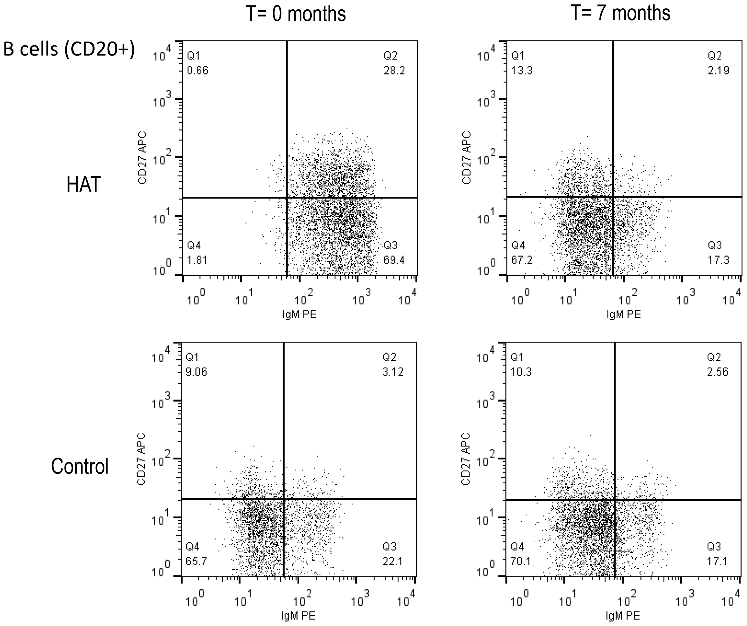 Flow cytometry dot plot of the CD20+ B-cell population in HAT and in a control.