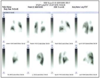 Perfúzna scintigrafi a pľúc z roku 2006, početné výpady v perfúzii pľúc obojstranne, znázornené ako biela a šedá zóna, čierna farba znázorňuje normálnu perfúziu pľúc.