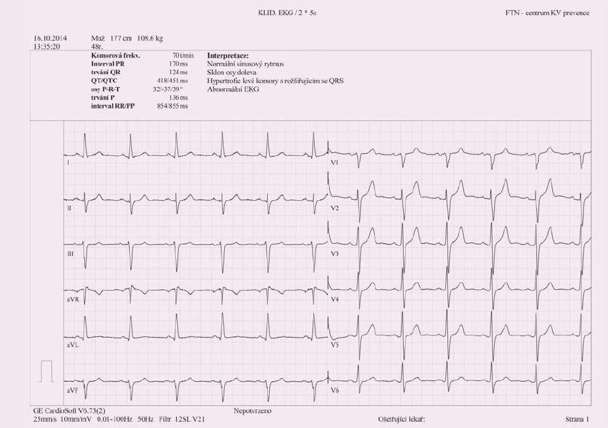 Obr. 1a. EKG na začátku sledování. (Panel A).