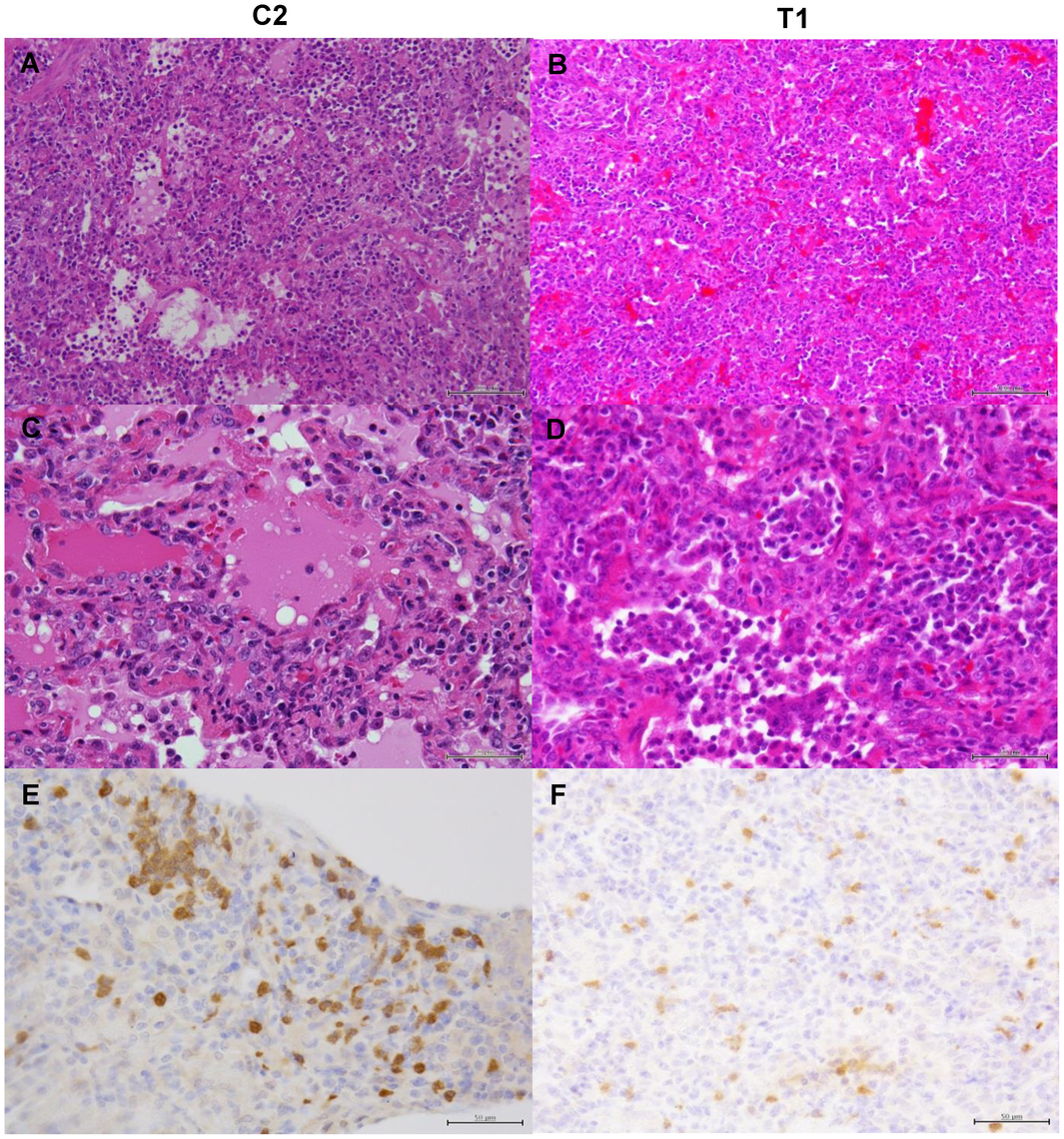 Histological analysis of pneumonia and distribution of viral antigens in immunocompetent macaques infected with VN3040.