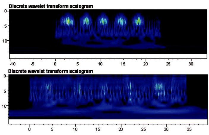 a) Výsledky - diskretní vlnková transformace pro m. latissimus dorsi režim na suchu. b) Výsledky - diskretní vlnková transformace pro m. latissimus dorsi režim ve vodním prostřední.