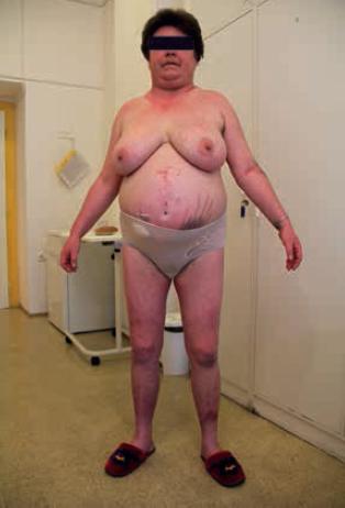 Habitus pacientky s Cushingovým syndromem. Z archivu autora.