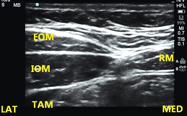 Ultrazvuková anatomie pod úrovní pupku EOM – m. obliquus abdominis externus, IOM – m. obliquus abdominis internus, TAM – m. transversus abdominis, RM – m. rectus abdominis