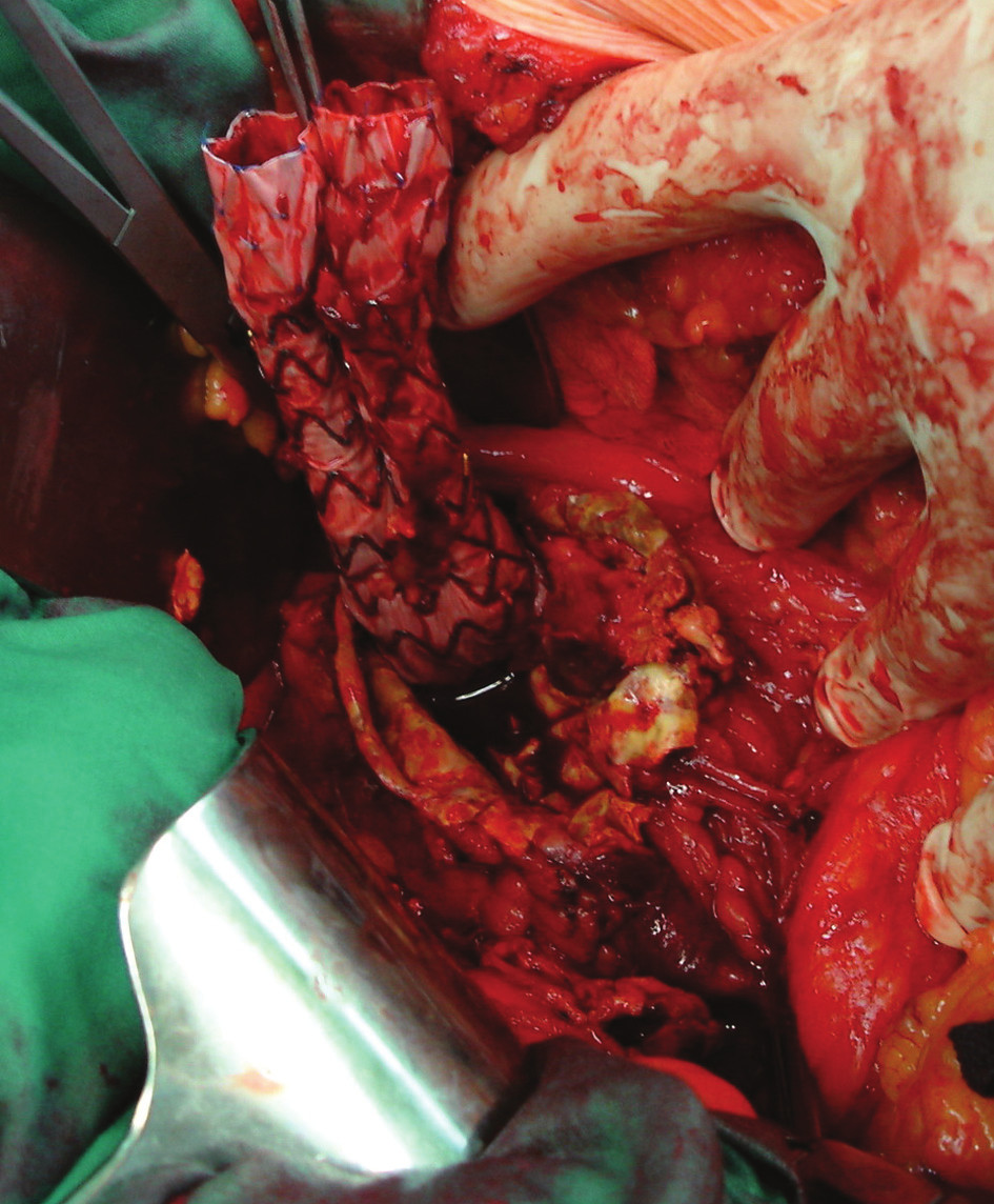 Extrahování stentgraftu