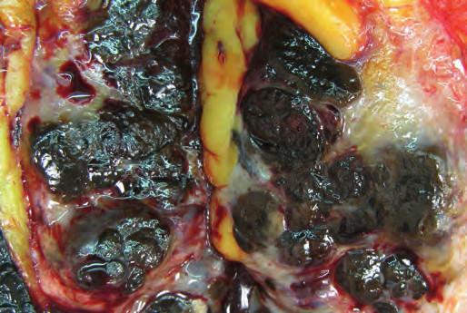 Řez tkání prsu s mnohočetnými pigmentovanými ložisky metastatického melanomu.