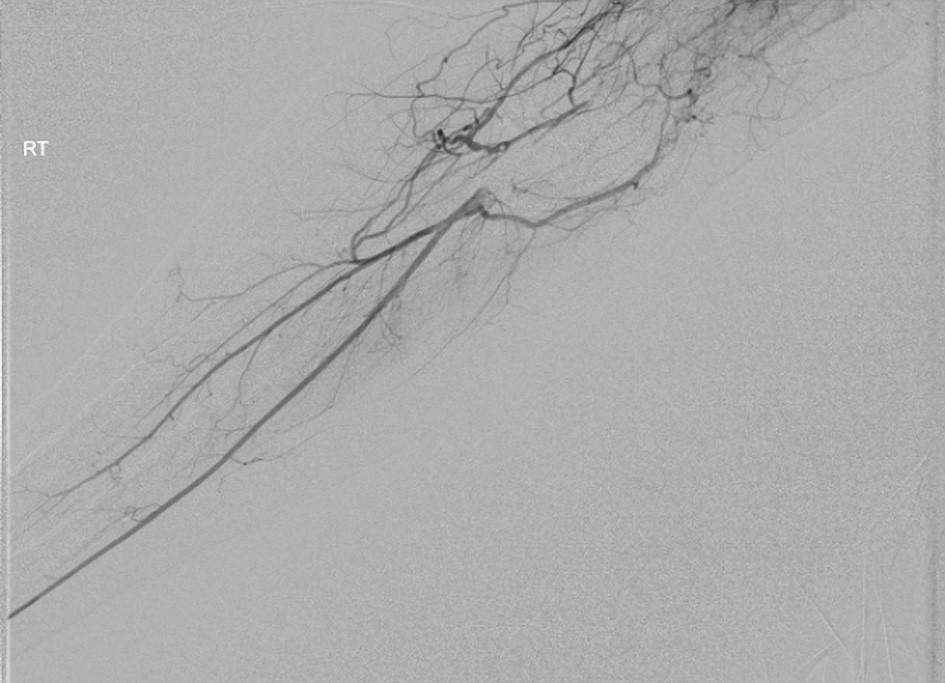 Obr. 3. Rekonstituce distální brachiální, radiální a interoseální tepny, selektivní angiografie po ukončení trombolýzy Fig. 3. Reconstitution of the distal brachial, radial and interosseal artery, selective angiography after cessation of thrombolysis
