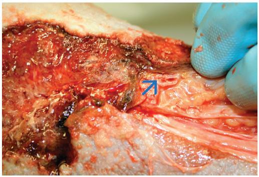 Po preparaci měkkých tkání byla na spodině horní části defektu nad vnitřním kotníkem pravé nohy zjištěna otevřená žilní stěna jedné z větví velké zjevné žíly – zdroj akutního krvácení (šipka).