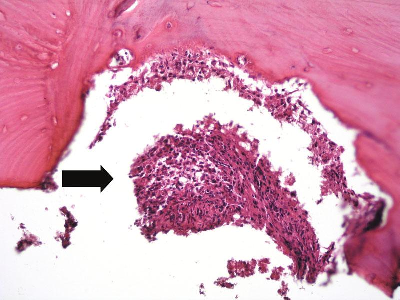 V horní části obrázku je kostní trámec lamelární kosti s infiltrací interdigitujícím dendritickým sarkomem (šipka). Hematoxylin-eozin, původní zvětšení 200krát.