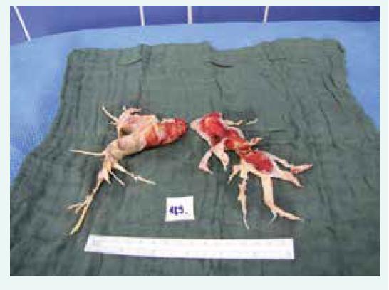 Endarterium odstraněné u nemocného s těžkou tromboembolickou plicní hypertenzí při plicní endarterektomii (typ postižení I)